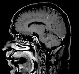 Michael Sirois - MRI Brain Scan